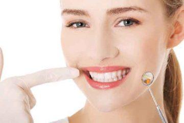 כל האמת על השתלות שיניים